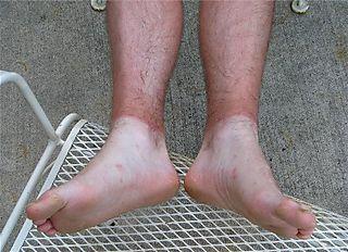 Jeremy's tan